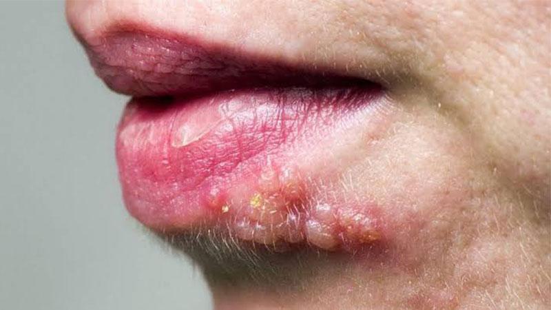 Biar Tak Salah Kaprah, Ketahuilah Penyakit Herpes Dan Infeksi Virus Herpes