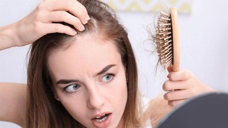 Inilah Penyebab Rambut Rontok dan Cara Mengatasinya